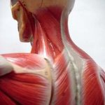 Cervicalgia o Artrosi Cervicale?